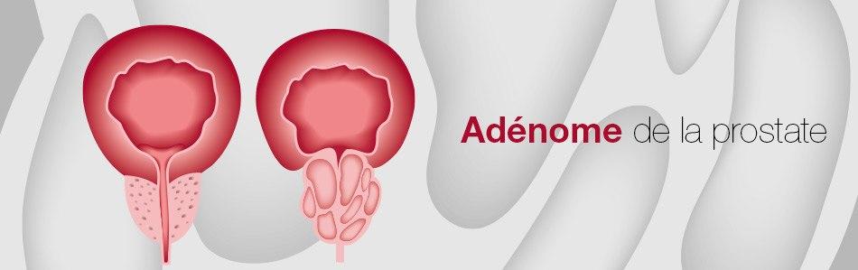 http://edap-tms.com/uploads/images/header/header-adenome.jpg