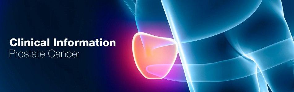 images/header/header-prostate-cancer.jpg